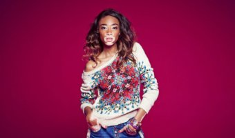 Style Muse – Winnie Harlow